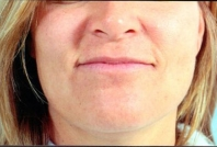 Lip Augmentation before 3446419
