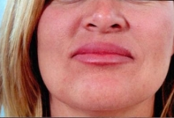 Lip Augmentation after 3446419