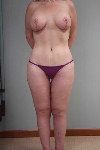 43 yr old lady. LBL, brachioplasty with J-component and liposuction legs after 1221932
