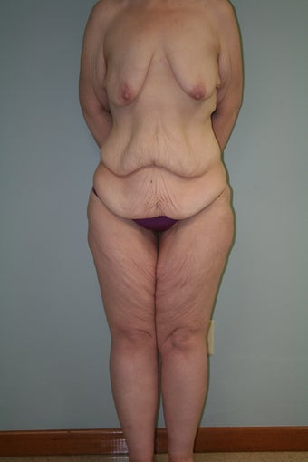 43 yr old lady. LBL, brachioplasty with J-component and liposuction legs before 1221932