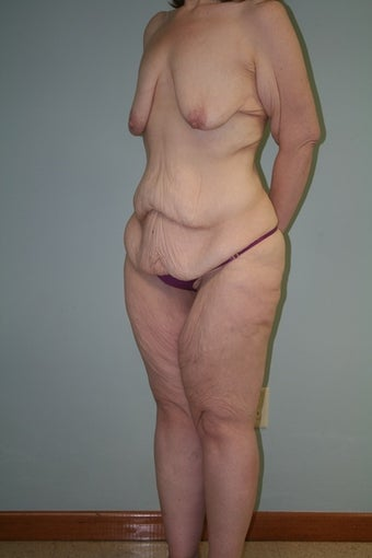 43 yr old lady. LBL, brachioplasty with J-component and liposuction legs 1221932