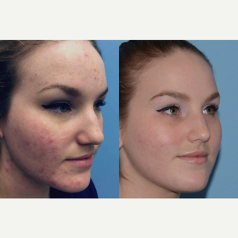 25-34 year old woman treated with Acne Treatment before 3246047