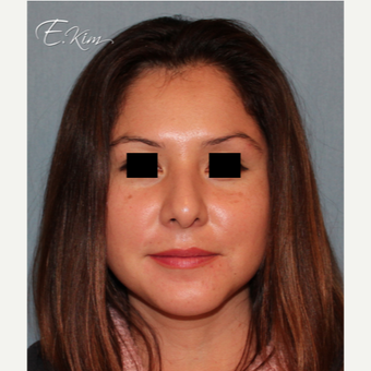 35-44 year old woman treated with Rhinoplasty before 3577982