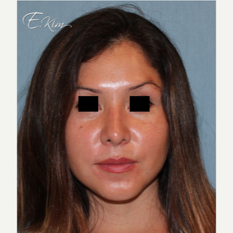35-44 year old woman treated with Rhinoplasty after 3577982