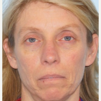 45-54 year old woman treated with Ptosis Surgery before 3727812