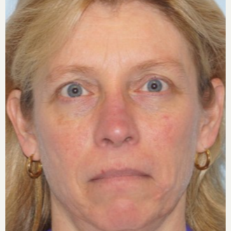 45-54 year old woman treated with Ptosis Surgery after 3727812