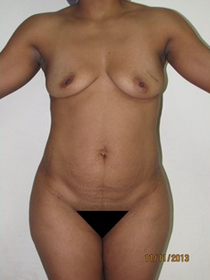 18-24 year old woman treated with Mommy Makeover before 1813959