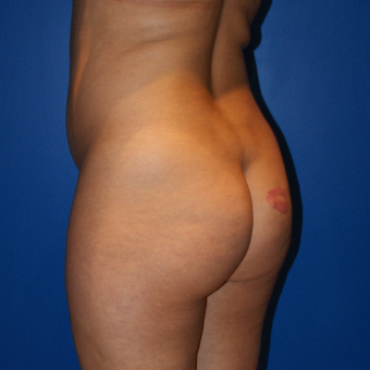 25-34 year old woman treated with Brazilian Butt Lift, Liposuction, and Fat Grafting before 3125883