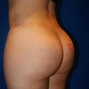 25-34 year old woman treated with Brazilian Butt Lift, Liposuction, and Fat Grafting after 3125883