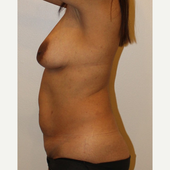 45-54 year old woman treated with Mommy Makeover before 3372621