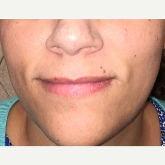 35-44 year old woman treated with Mole Removal