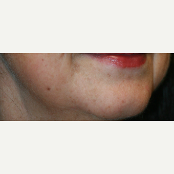 55-64 year old woman treated with Injectable Fillers before 3425560