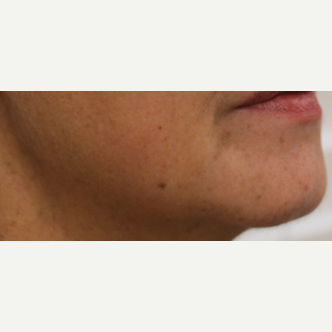 55-64 year old woman treated with Injectable Fillers after 3425560