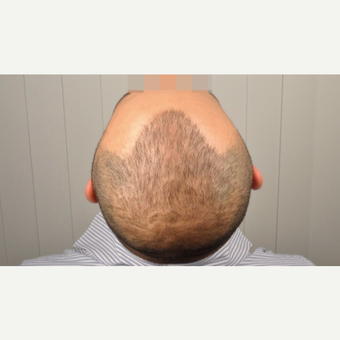 35-44 year old man treated with 4312 Grafts FUE Hair Transplant after 3091564