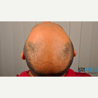 35-44 year old man treated with 4312 Grafts FUE Hair Transplant before 3091564