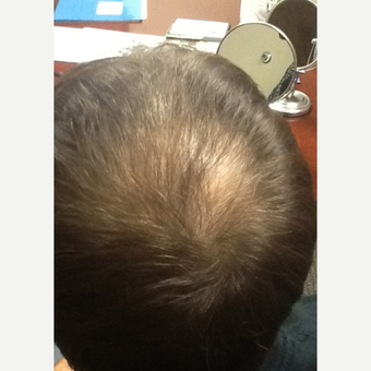 35-44 year old woman treated with ARTAS Robotic Hair Transplant before 3103786