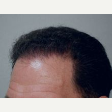 Hair Transplant after 3241442