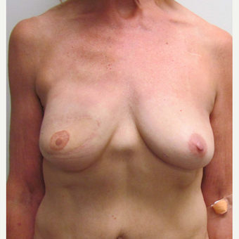 Breast Reconstruction Revision for this 60 Year Old Woman before 3093467