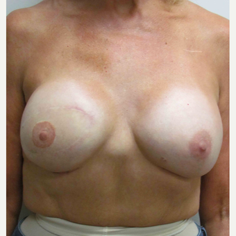 Breast Reconstruction Revision for this 60 Year Old Woman after 3093467