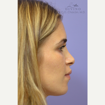 25-34 year old woman treated with Cheek Augmentation before 3421928
