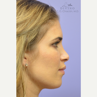 25-34 year old woman treated with Cheek Augmentation after 3421928