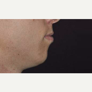 Chin Implant before 3148628