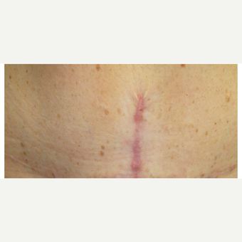 25-34 year old woman treated with Pulsed Dye Laser before 2833279