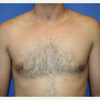 25-34 year old woman treated with Male Breast Reduction after 2994497