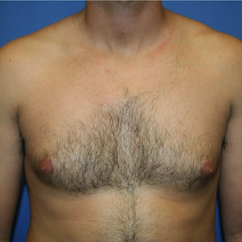 25-34 year old woman treated with Male Breast Reduction before 2994497