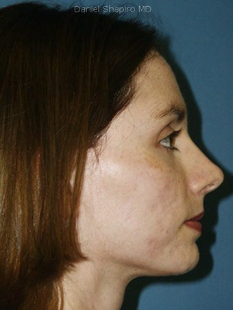 Full face erbium laser resurfacing after 250242