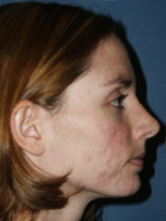 Full face erbium laser resurfacing before 250242