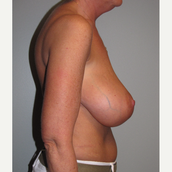 45-54 year old woman treated with Breast Reduction before 3663517