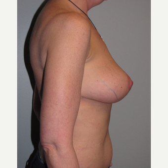 45-54 year old woman treated with Breast Reduction after 3663517