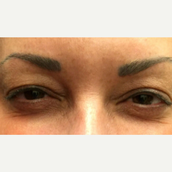 35-44 year old woman treated with Botox before 3399406