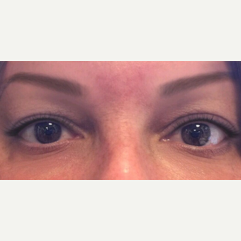 35-44 year old woman treated with Botox after 3399406
