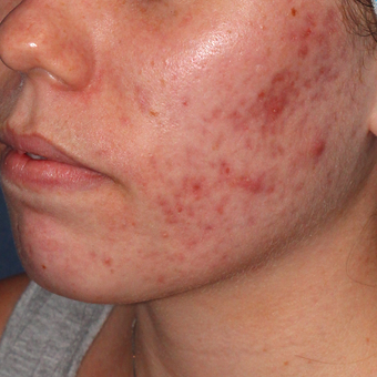 20 year old woman treated with PDT for severe scarring acne before 3076863