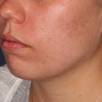 20 year old woman treated with PDT for severe scarring acne after 3076863