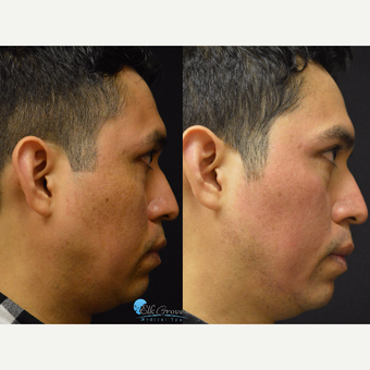25-34 year old man treated with Halo Laser