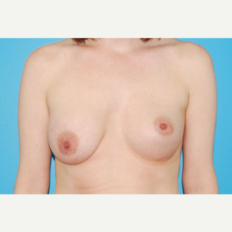 25-34 year old woman treated with Breast Implant Revision and Breast Lift before 3018415