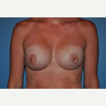 25-34 year old woman treated with Breast Implant Revision and Breast Lift after 3018415