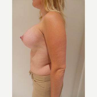 25-34 year old woman treated with Breast Implants after 3765700
