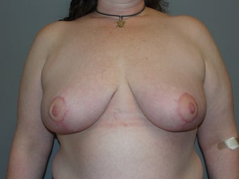 41 year old, breast reduction; large volume after 1067013