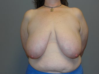41 year old, breast reduction; large volume before 1067013