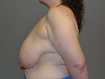 41 year old, breast reduction; large volume 1067013