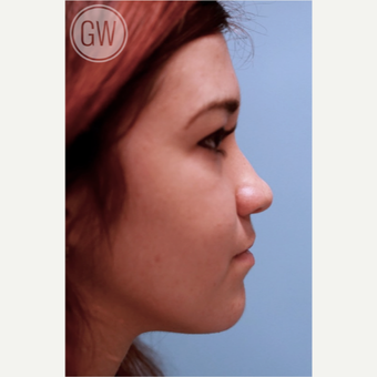 18-24 year old woman treated with Nose Surgery before 3477944