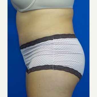 35-44 year old woman treated with Tummy Tuck after 3769563
