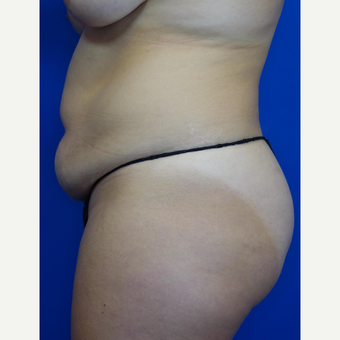 35-44 year old woman treated with Tummy Tuck before 3769563