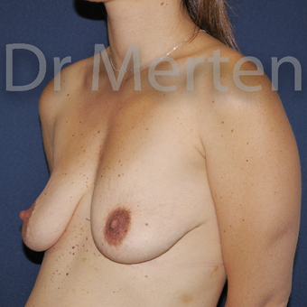 25-34 year old woman treated with Breast Lift with Implants before 3591899