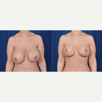 35-44 year old woman treated with Breast Reduction before 3542576