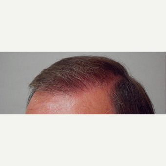 Hair Transplant after 3241320